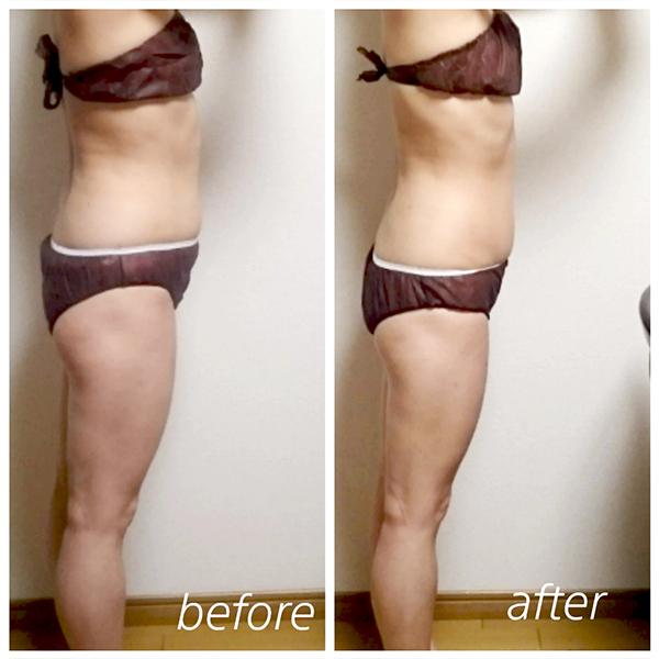 本気の痩身・ダイエットのエステマシン、コアヒート1回90分の結果