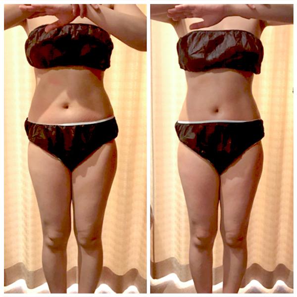 本気の痩身・ダイエットのエステマシン、コアヒート1回の結果(70分)