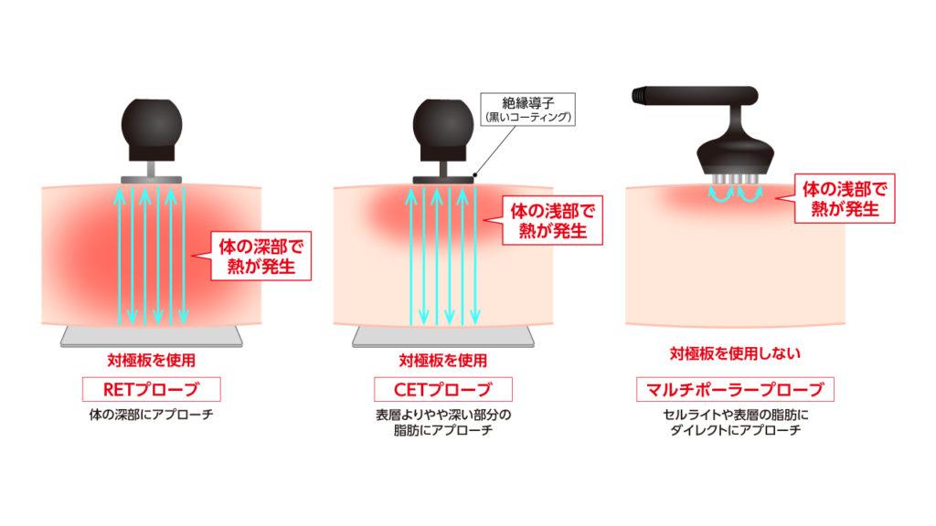 コアヒートの3種のラジオ波のイメージ