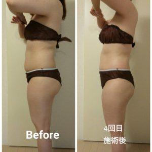 痩せにくい体質がコアヒートで徐々に変わってきてます!お客様の声