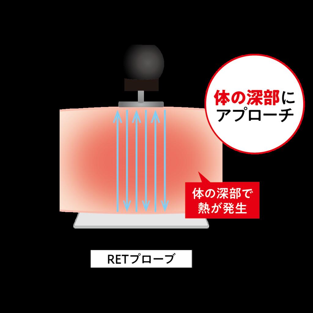 ラジオ波エステ機器コアヒートの体の深部にアプローチするRETプローブ