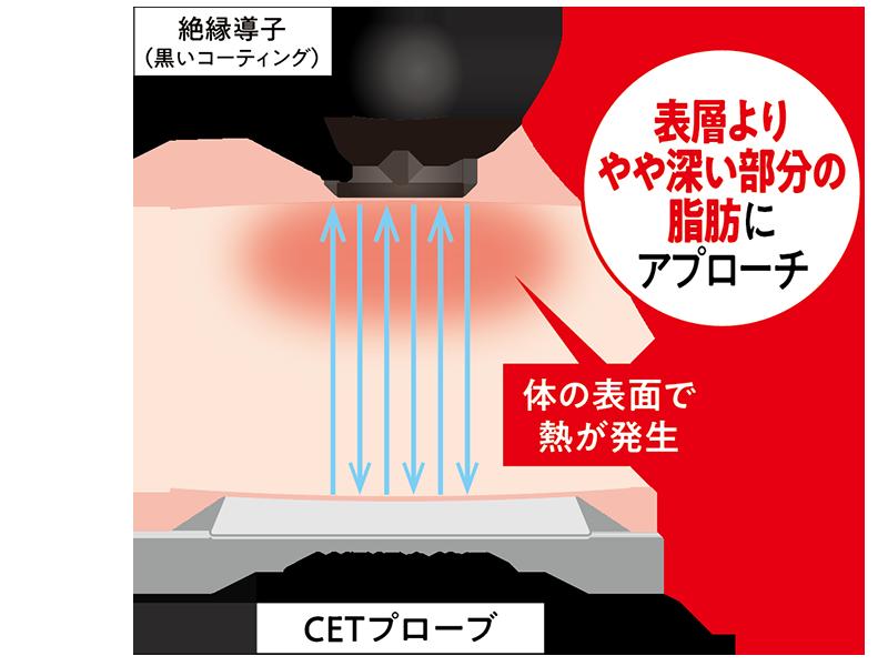 業務用ラジオ波エステ機器コアヒートの表層よりやや深い部分の脂肪にアプローチするCETプローブ