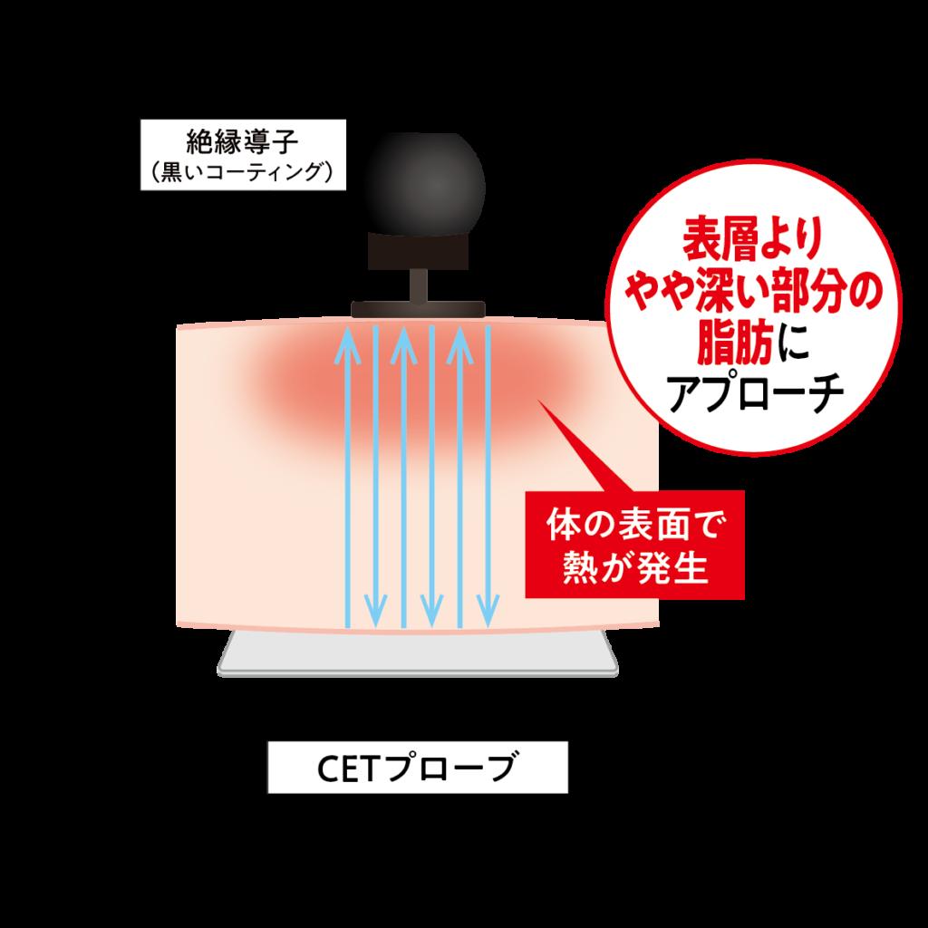 ラジオ波エステ機器コアヒートの表層よりやや深い部分の脂肪にアプローチするCETプローブ