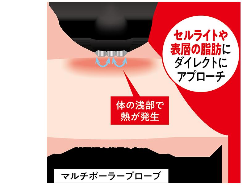 業務用ラジオ波エステ機器コアヒートのセルライトや表層の脂肪にダイレクトにアプローチするマルチポーラープローブ